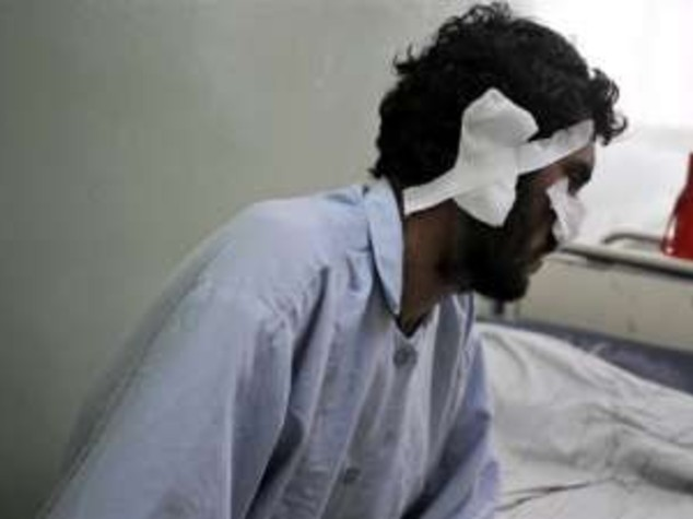 AFGHANISTAN: SFIDA TALEBANI E VOTA, MUTILATO DI NASO E ORECCHIE