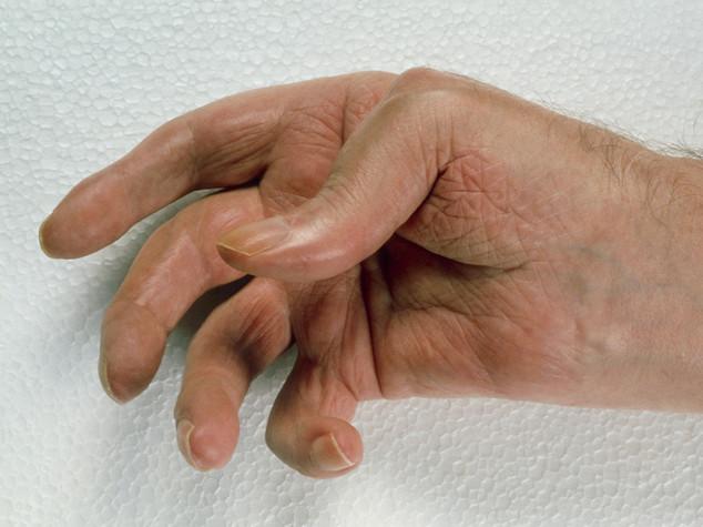 """Salute: scoperto """"grilletto molecolare"""" dell'artrite reumatoide"""