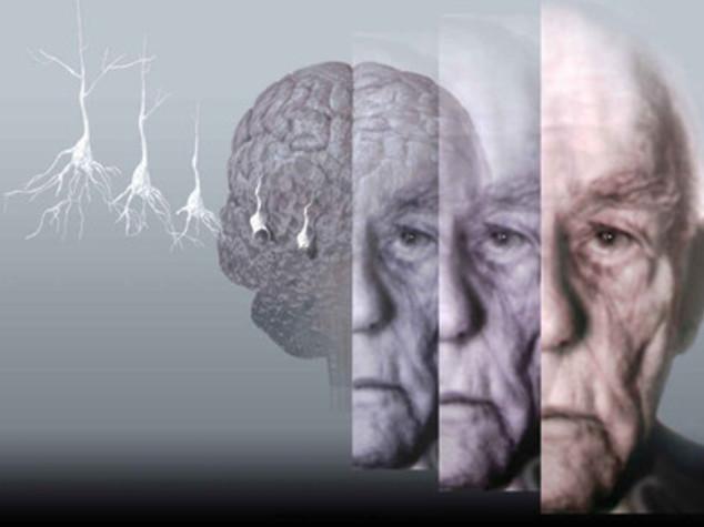 Iniezioni di proteina naturale per fermare l'Alzheimer