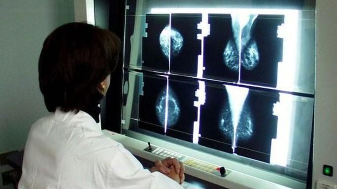 Tumori: esperti, ogni giorno 30 nuove diagnosi in under 40
