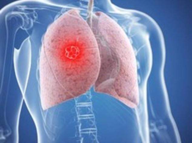 Identificate nuove mutazioni per cancro al polmone