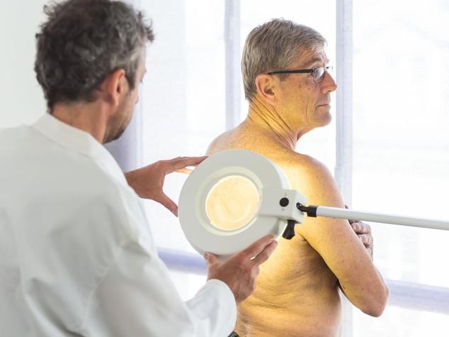 """Tumori: portatori del """"gene dei rossi"""" piu' a rischio melanoma"""