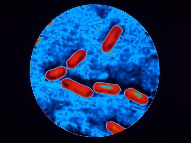 Allarme 'super batterio' negli Usa
