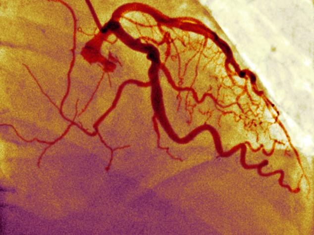 Vasi sanguigni artificiali per pazienti in dialisi