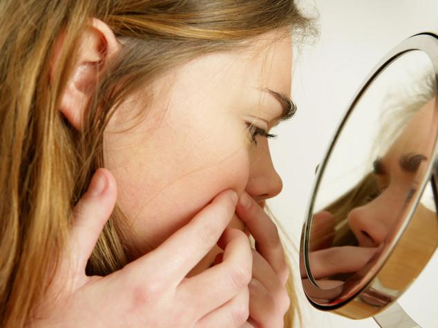Gravita' acne legata ad alterazioni del sebo