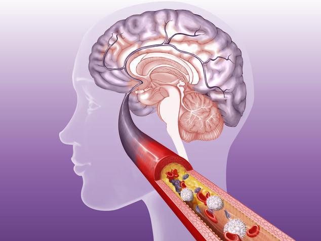 Scoperto legame tra batteri intestinali e sclerosi multipa