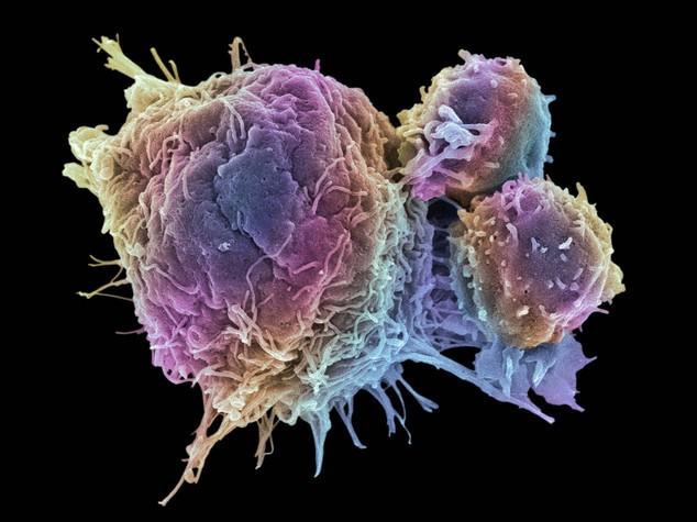 Tumori: nuovo metodo non invasivo uccide cellule malate