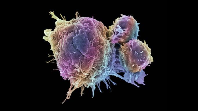 Se possiamo fermare lo 'spazzino molecolare' fermiamo il tumore