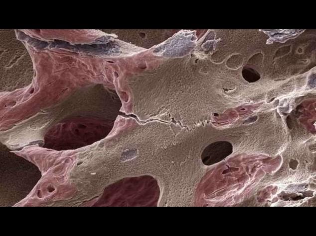 Osteoporosi: da proteina denti un aiuto per rigenerazione ossea