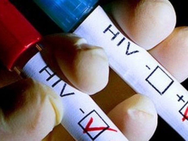 Allarme Aids tra gli adolescenti, dal 2000 raddoppiato numero dei morti
