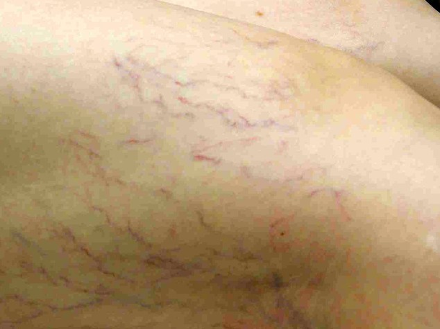 Rischio trombosi venosa? Un'app (italiana) per prevenirla