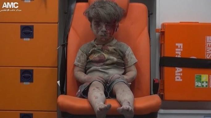 Siria, morto a 10 anni il fratello di Omran