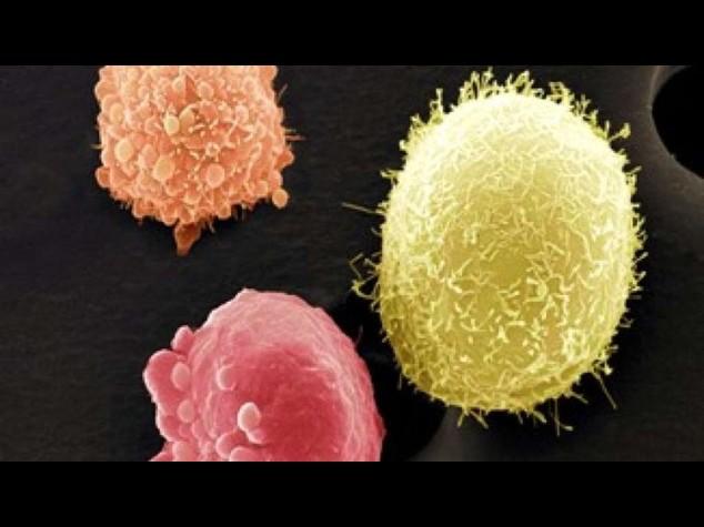 Cellule tumorali malate usano meccanismo neuroni per sopravvivere