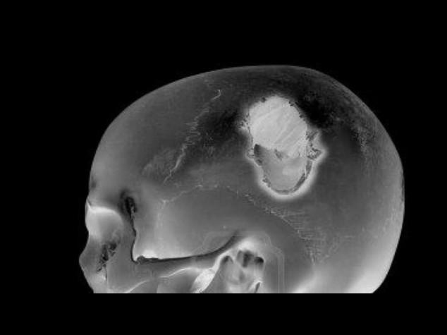 Trauma cranico lieve puo' causare danni cerebrali
