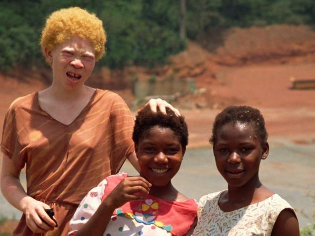 """""""Ricchezza, salute, fortuna"""". Superstizioni e magia nera dietro la strage degli albini africani"""
