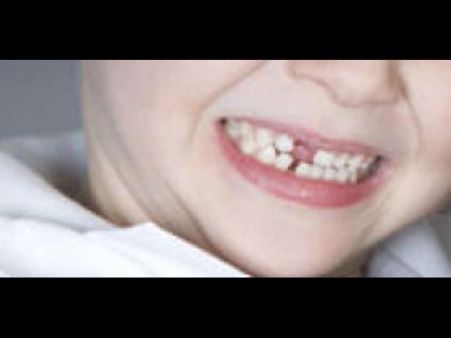 Estate: dentisti, ecco decalogo per proteggere sorriso bimbi