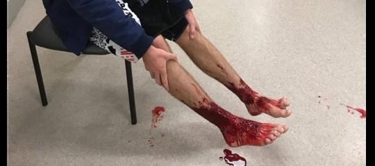Cosa ha causato quelle ferite ai piedi del ragazzo australiano