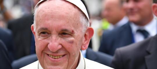 Colombia, Papa Francesco medicato al viso in casa di accoglienza per senza tetto
