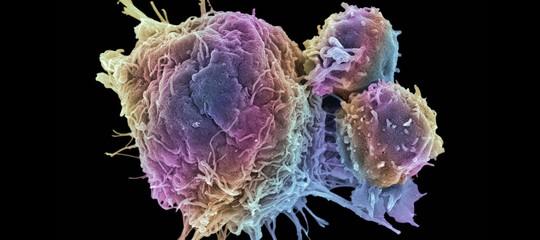 I killer del cancro sono dentro di noi: così con Yescarta combatteremo i tumori