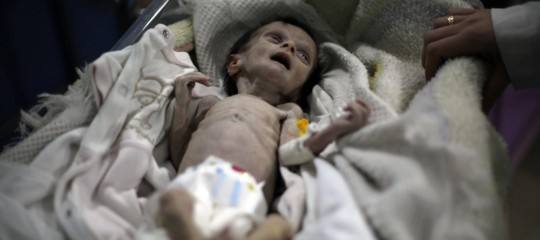 Morire di fame dopo un mese di vita, in Siria
