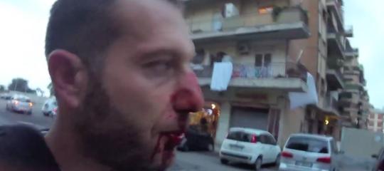 """""""Ipocrita arrestare Spada per avermi rotto il naso"""""""