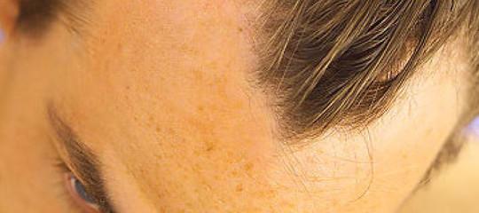 Gli uomini che perdono presto i capelli rischiano di più un infarto? Uno studio