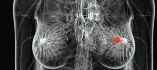 cancro seno mastectomia bilaterale