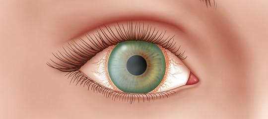 Cosa è la malattia degli occhi che si cura grazie al 'collirioMontalcini'