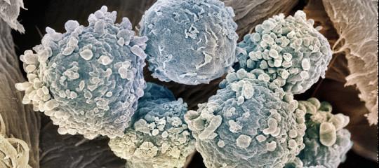 """Il farmaco """"vivente"""" sperimentato su un bambino malato di leucemia"""
