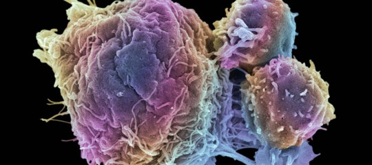 Salute: in Europa di cancro si muore di meno