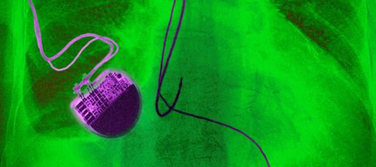 Nel petto di350 mila americani ci sono pacemaker a rischio attacco informatico