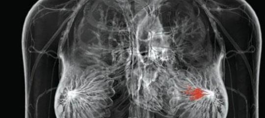 Nuovi risultati importanti nella lotta al cancro al seno