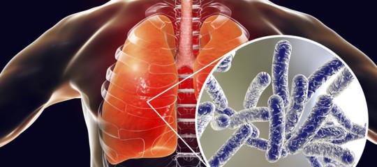 Legionella, sale a 26 il bilancio delle persone contagiate
