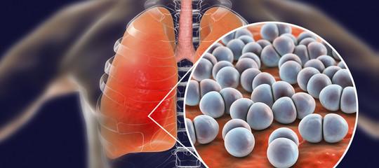 Perché quello che sappiamo sull'epidemia di polmonite non basta a debellarla