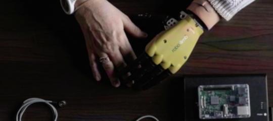 La prima mano bionica che funziona come quella umana