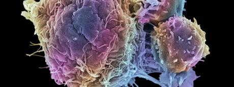 cellule tumorali tumore cancro - afp