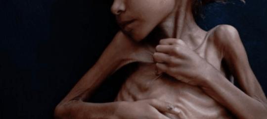 È morta a 7 anni per fame la bambina yemenita diventata un 'simbolo' del New York Times
