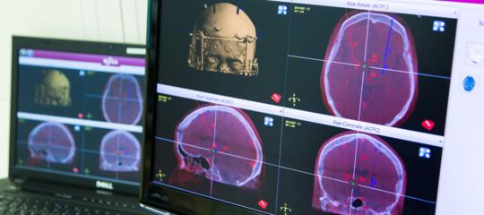 stimolazione cerebrale cura Parkinson