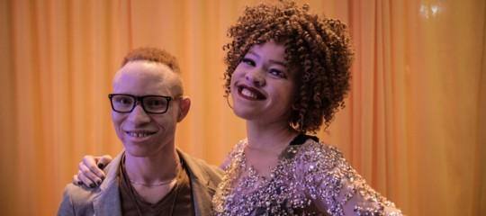 Il concorso di bellezza per riscattare gli albini africani dalle persecuzioni