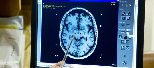 cervello elettricita neuroni linguaggio