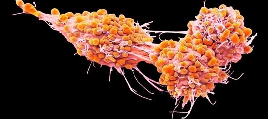 tumore ovarico scoperta