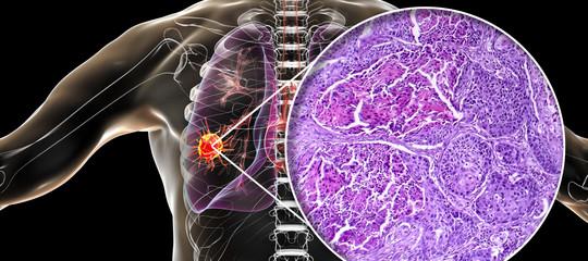 cancro polmone diagnosi precoce fumatori