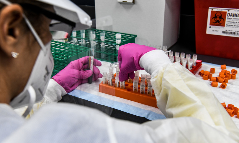 """""""Il vaccino italiano non arriverà prima della seconda metà del 2021"""""""