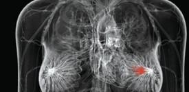 """Scoperte """"molecole bersaglio"""" contro il cancro al seno"""