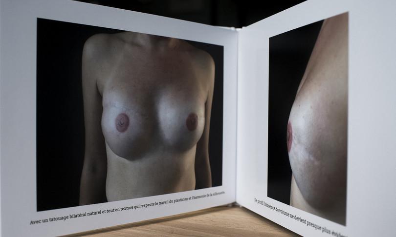 tumori lazio fondo tatuaggi cicatrici seno