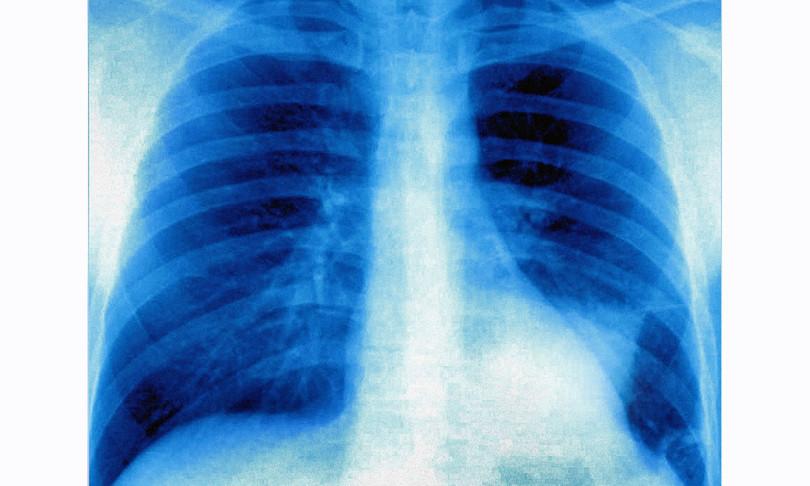 Tumore polmone Cnr studio farmaco trattamento