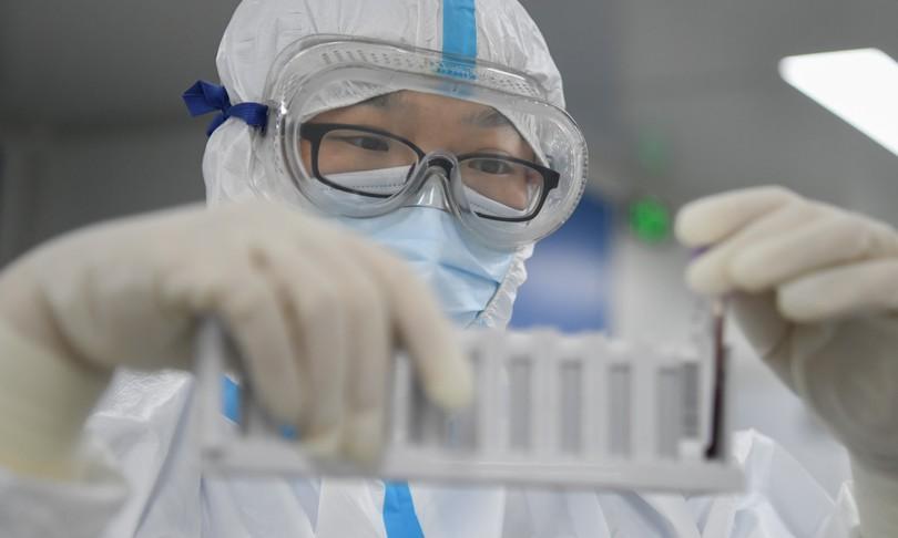 trevirologi cinesi Wuhanmalati di Covidnovembre 2019