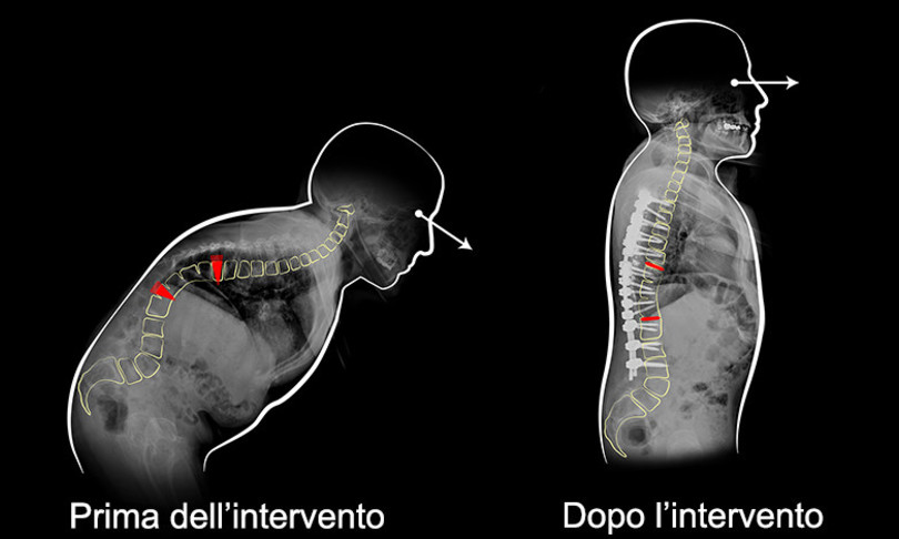 raddrizzata intervento schiena curva 100 gradi