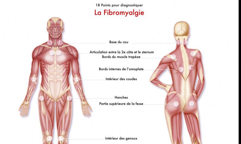 covid studio svela legami fibromialgia