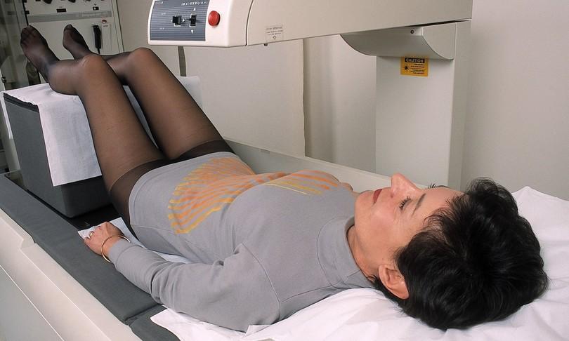 cambiamenti nel ciclo mestruale predicono malattie cuore
